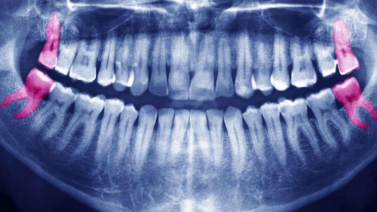 Удаление зуба мудрости - Стоматология и челюстная хирургия
